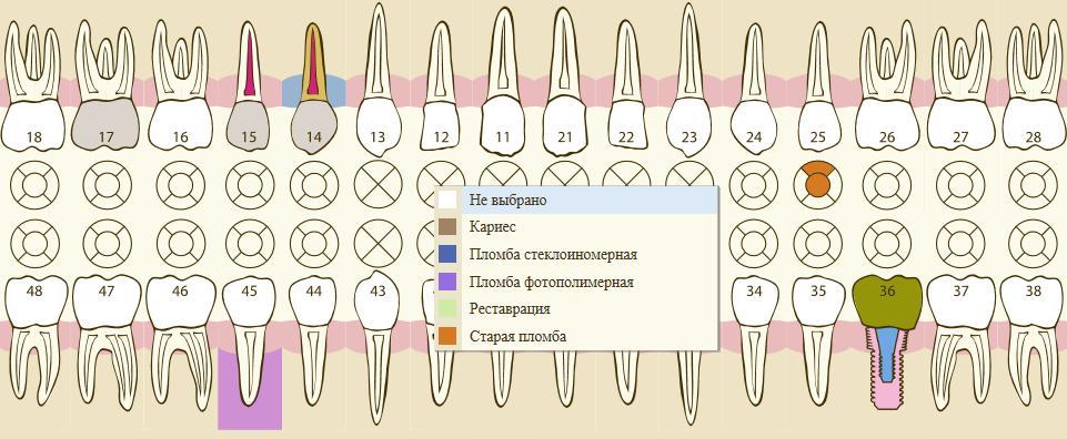 графическое представление зубной формулы 1С:Медицина. Стоматологическая клиника
